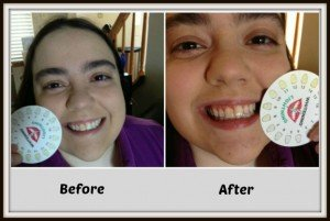 Whitening Lightning Zero Review Eco Friendly Teeth